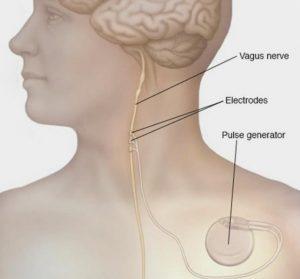 Лечение эпилепсии в Москве - Neuroapex