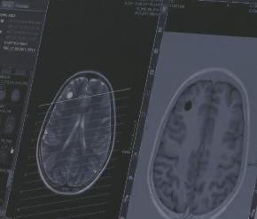 Лечение эпилепсии у взрослых - Neuroapex
